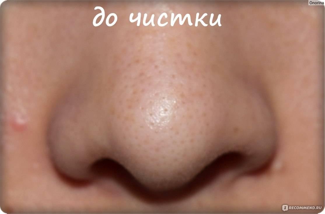 Процедуры для сужения пор на лице в салоне * как убрать поры на лице салонными методами