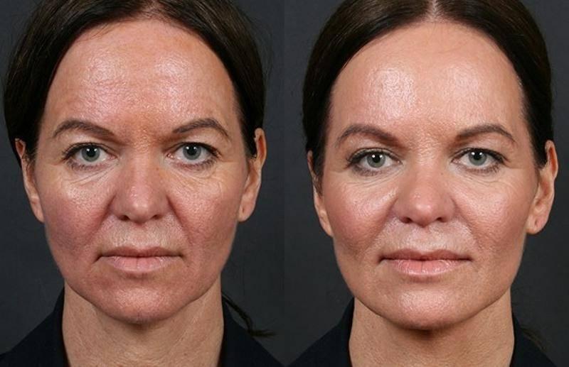 Энзимный пилинг лица в салоне: фото до и после, как проводится, видео отзывы