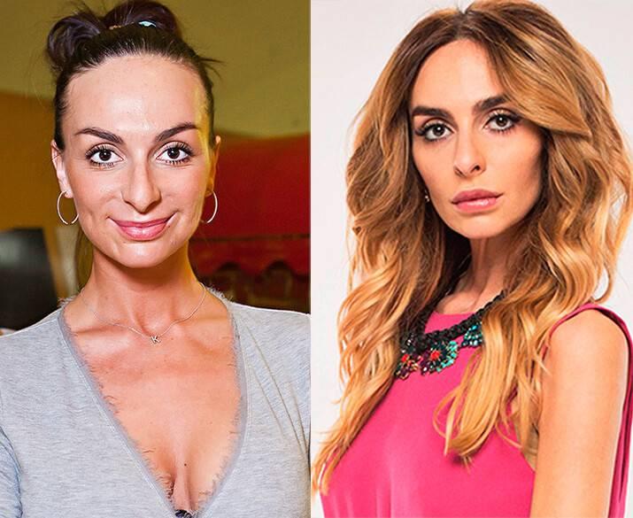 Екатерина варнава: фото до и после операции, какой была