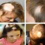 Причины и лечение очаговой (гнездной или тотальной) алопеции у детей