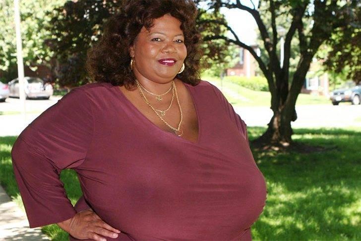 Майра хиллс – обладательница самой большой силиконовой груди в мире: фото, как живет сейчас