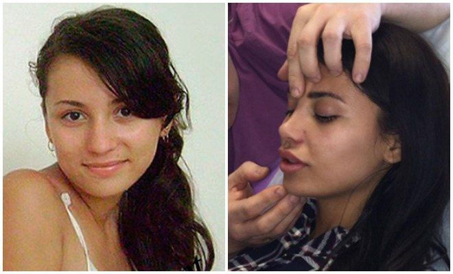 Что случилось с лицом бузовой. ольга бузова — фото до и после пластики носа, губ, скул