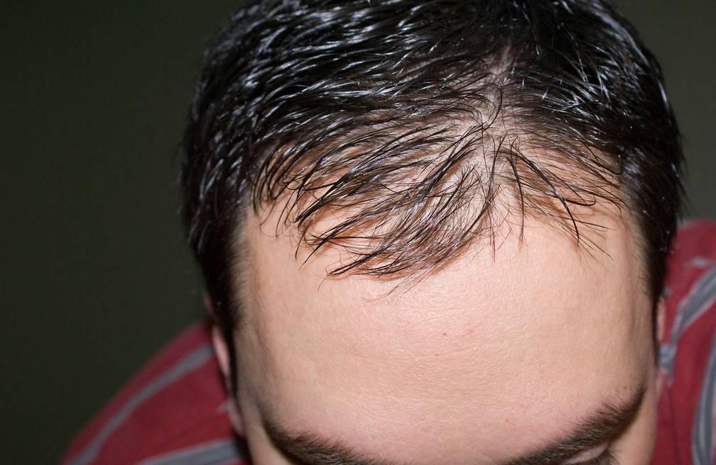 Облысение у мужчин: причины, типы и лечение. как избавиться от лысины?