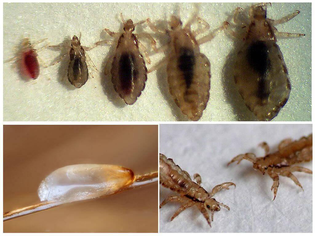Инкубационный период вшей — как размножаются