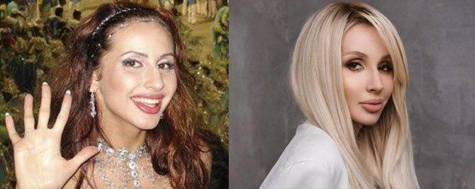 Певица lp до и после пластики с примером фото