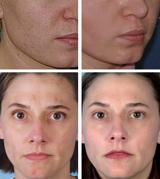 Ультразвуковая чистка лица: фото до и после, отзывы пациентов - idealplastic.ru