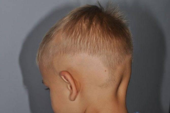 Причины возникновения алопеции у детей и выбор тактики терапии