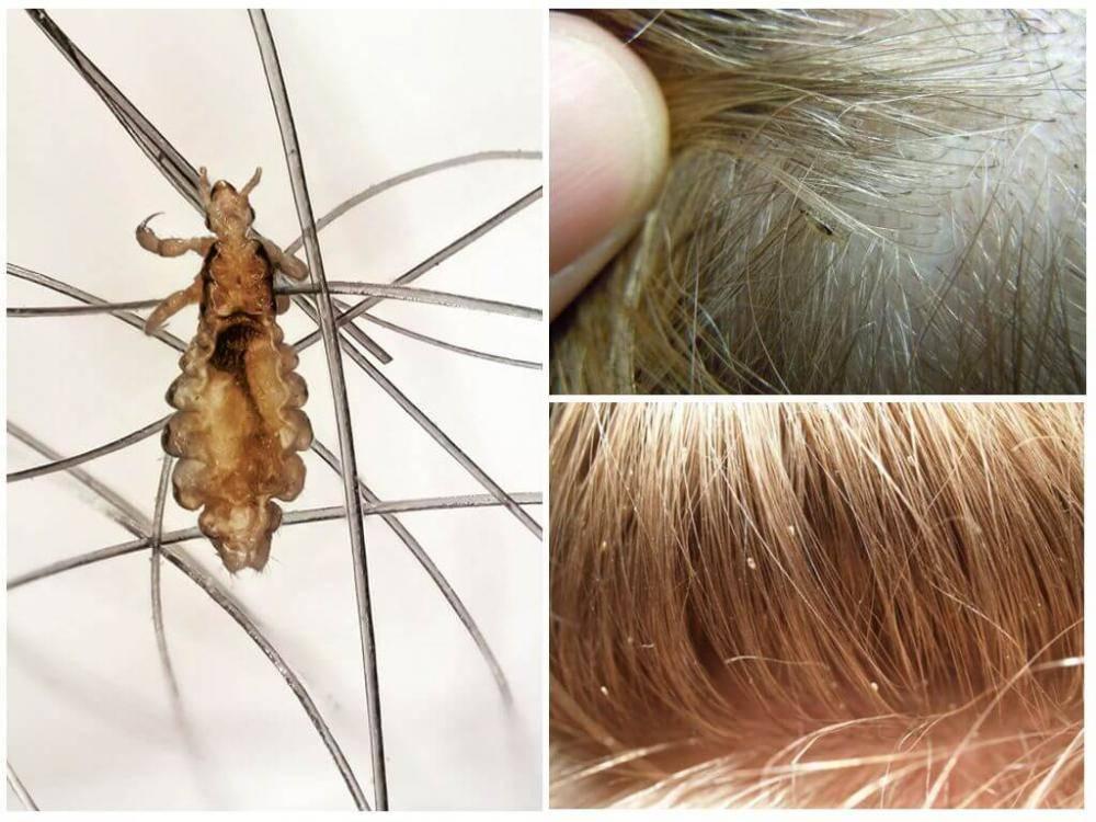 Вши у ребенка: как вывести паразитов и избавиться от гнид на голове?