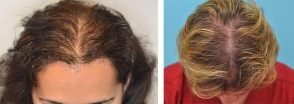 Почему у беременных выпадают волосы: основные причины алопеции у будущих матерей а также методы лечения и профилактика