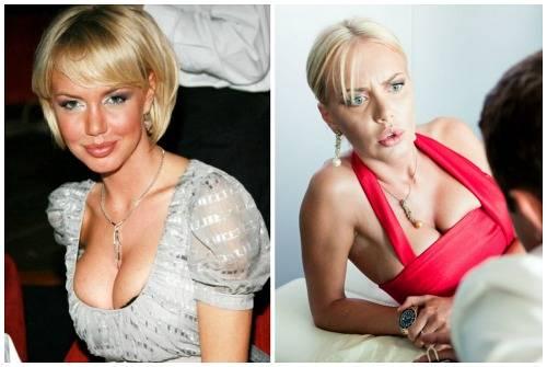 Алена шишкова: до и после пластики +фото - какие пластические операции пришлось провести , чтобы создать идеальную внешность модели? биграфия
