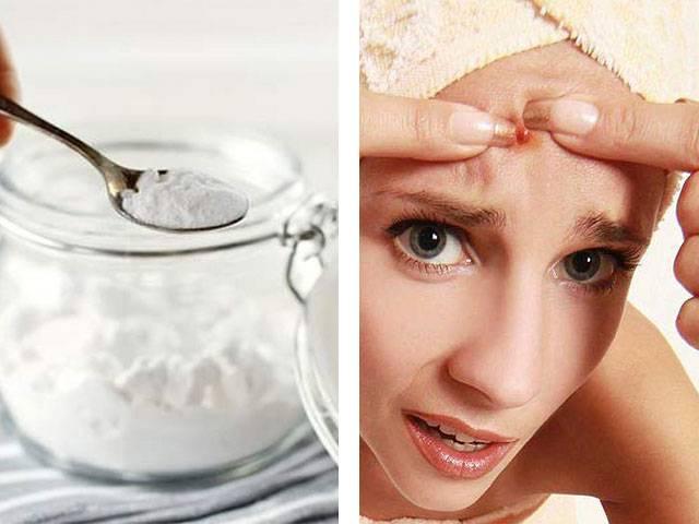 10 домашних масок для лица с содой: свойства, польза, показания к применению, приготовление, нанесение, противопоказания