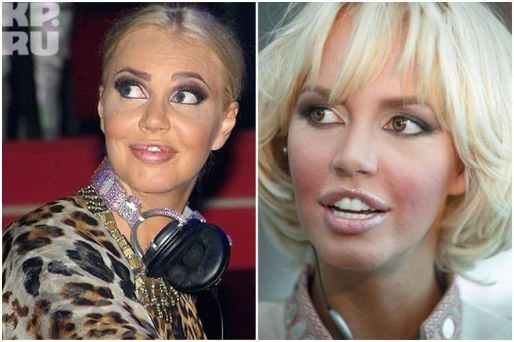 Как выглядят звёзды до и после пластической хирургии