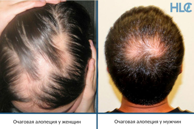 Выпадение волос при беременности: причины на ранних сроках, обзоры витаминов и средств с отзывами о лечении