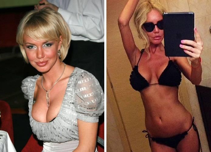 Малиновская маша до и после пластики: фото