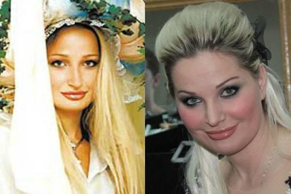 Какие пластические операции делала певица валерия, фото до и после пластики | adrin