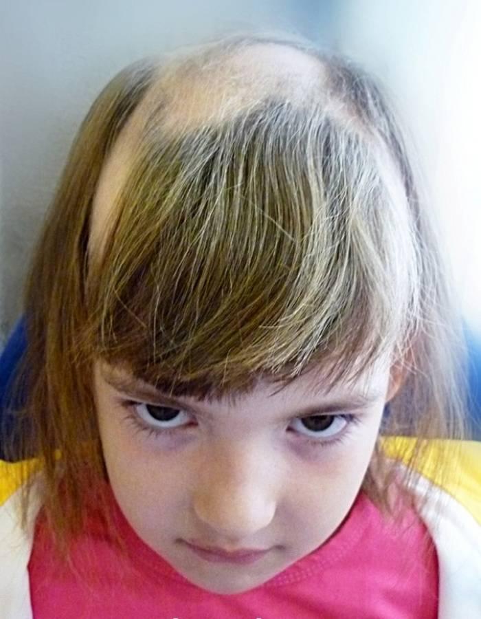 Выпадают волосы у ребенка: причины плохих волос, профилактика