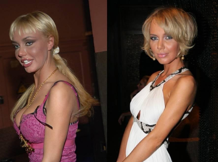 Маша малиновская до и после пластических операций, фото и видео маша малиновская: не лопнула от силикона, а сдулась – womanmirror