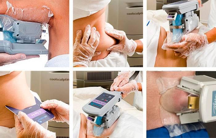 Процедура криолиполиза – на сколько можно похудеть?