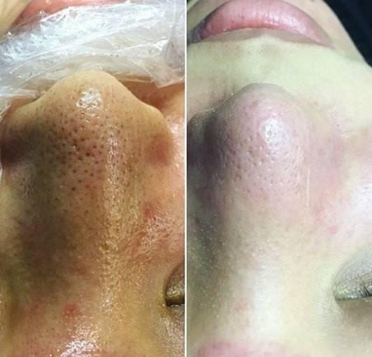 Какая чистка лица лучше для проблемной, жирной кожи – обзор самых эффективных процедур в салоне