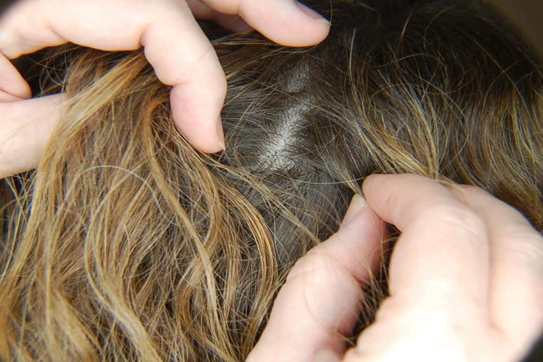 Сколько живут вши и гниды на голове человека и за её пределами?