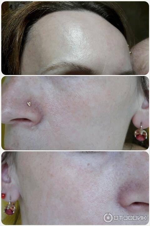 Ультразвуковой пилинг лица - отзывы. лицо после ультразвукового пилинга - фото до и после