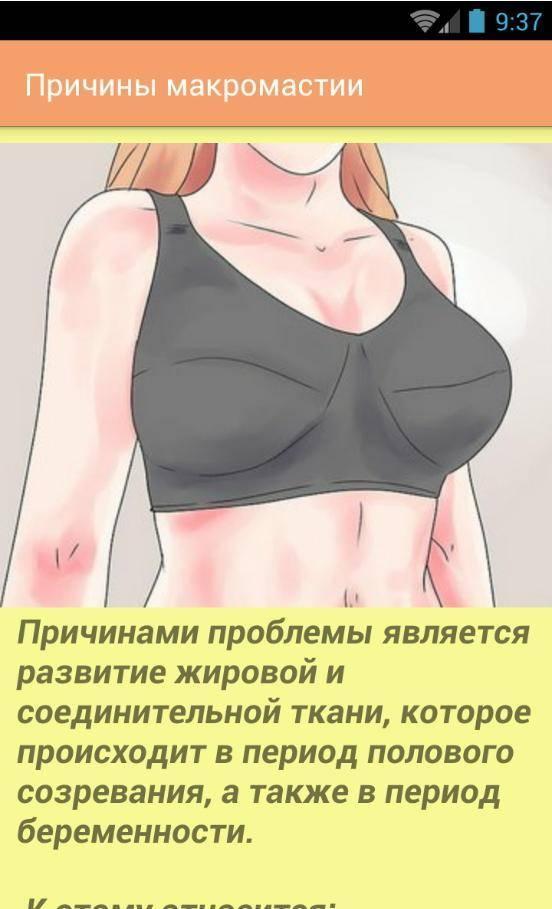Как уменьшить размер груди?