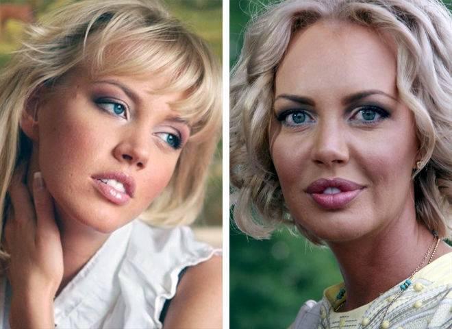 Эмма малинина фото, пластика, секреты красоты