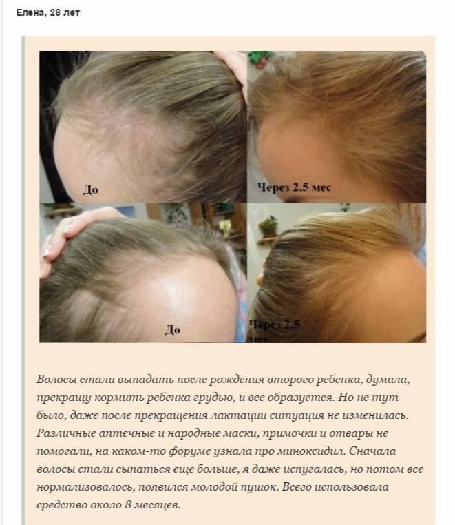 Миноксидил для роста волос на голове: инструкция по применению препарата, показния и противопоказания, отзывы с фото до и после, цена