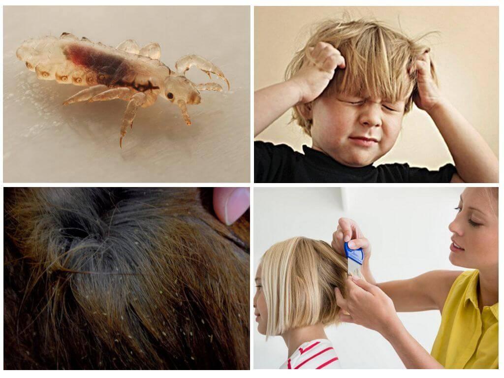 Как избавиться от вшей и гнид на голове: эффективные методы лечения педикулеза