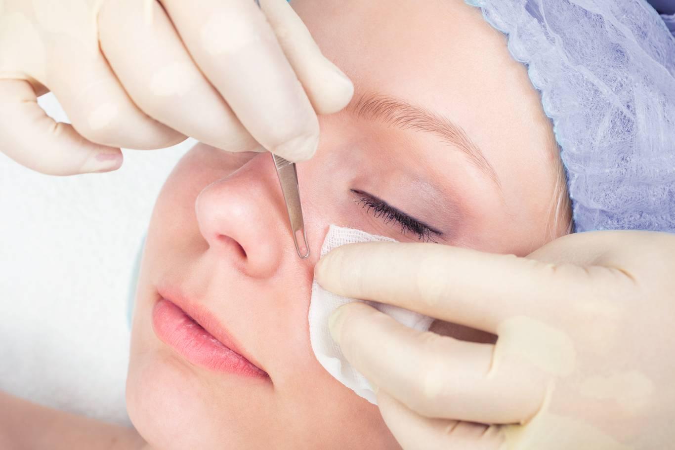 Особенности проведения и преимущества чистки лица у косметолога