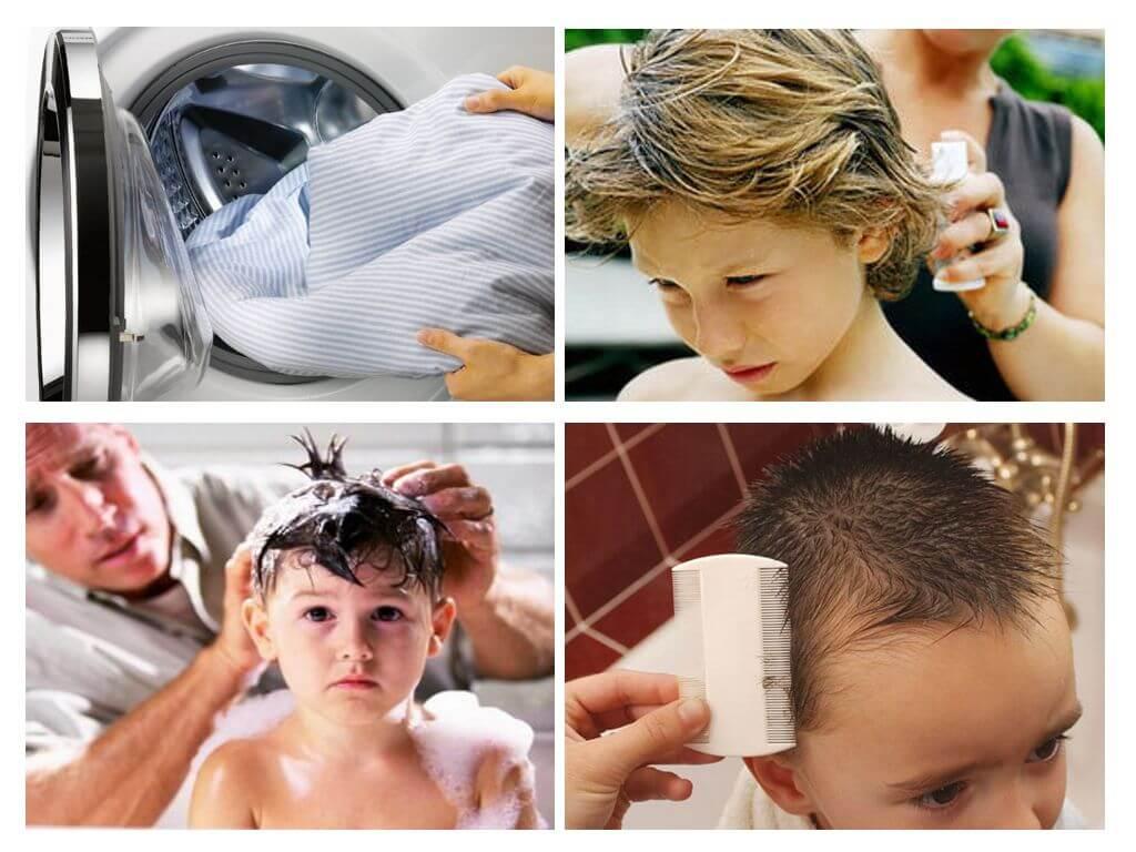 Эффективные народные средства от вшей и гнид у детей