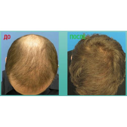 Обзор эффективных спреев для роста волос: генеролон, пантенол, platinus, shevelux и многих других, их действие и компоненты