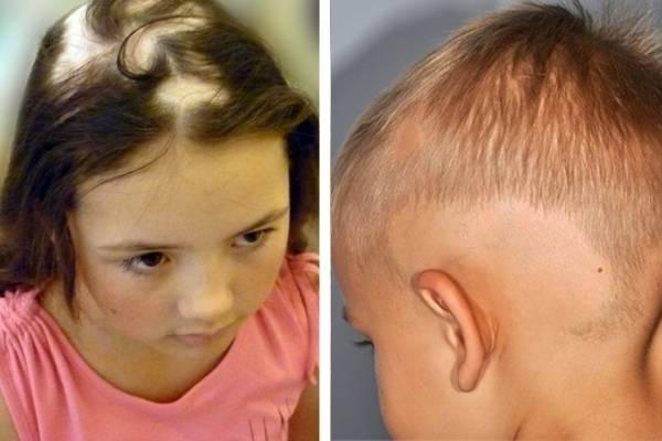 Алопеция у детей: факторы, народная медицина, профилактика