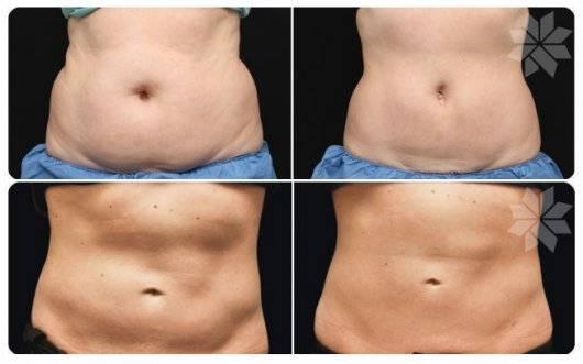 Криолиполиз - польза холода при жировых отложениях   пластическая хирургия и косметология