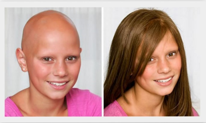 Можно ли красить волосы после химиотерапии