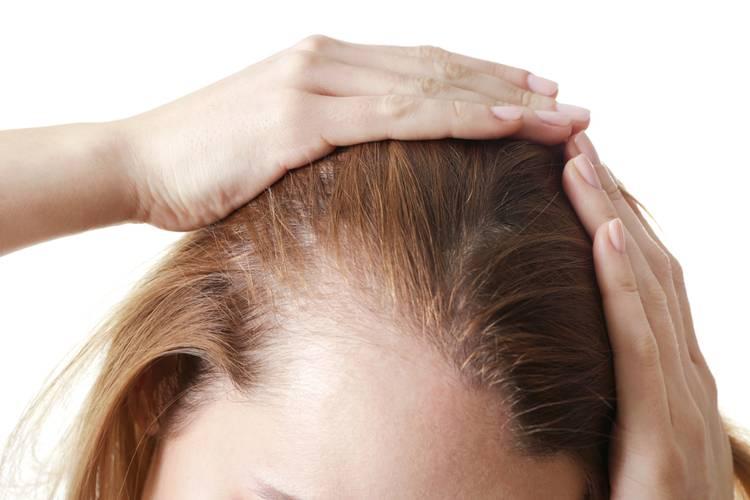 Когда у ребенка волосы выпадают: причины и лечение болезни