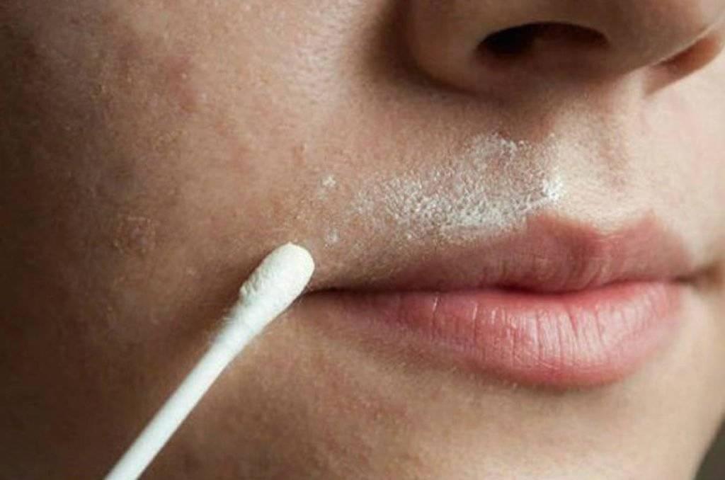 Как избавиться от усиков над верхней губой навсегда: рецепты, советы
