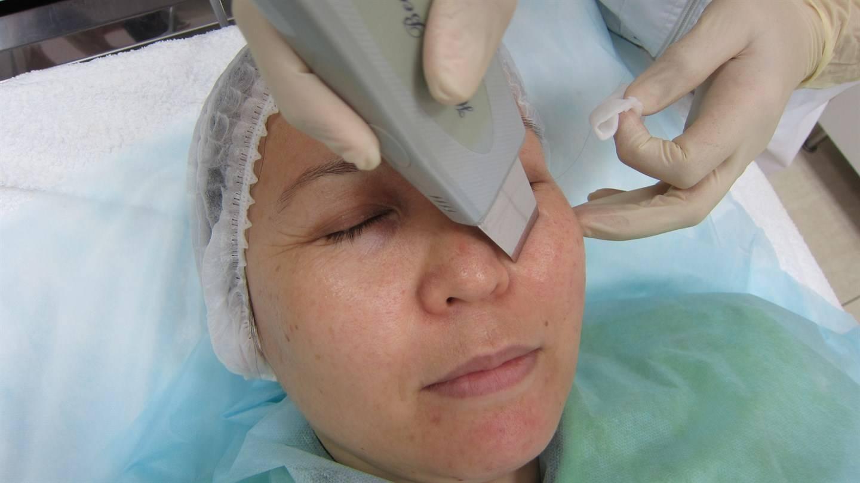 Ультразвуковая чистка лица: плюсы и минусы, показания, противопоказания