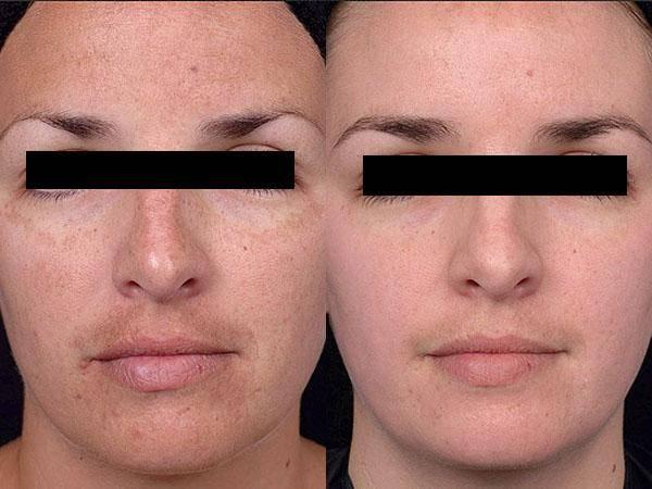 Энзимный пилинг - как делается, польза, противопоказания + отзывы и фото до и после
