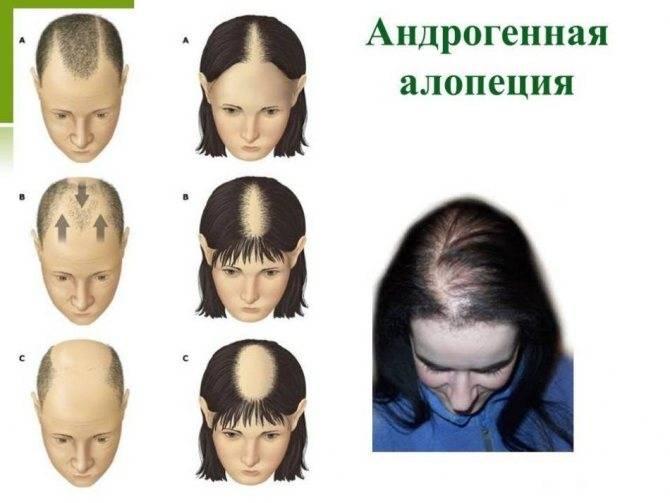 Причины, симптомы и лечение алопеции у детей: советы специалистов – лечение