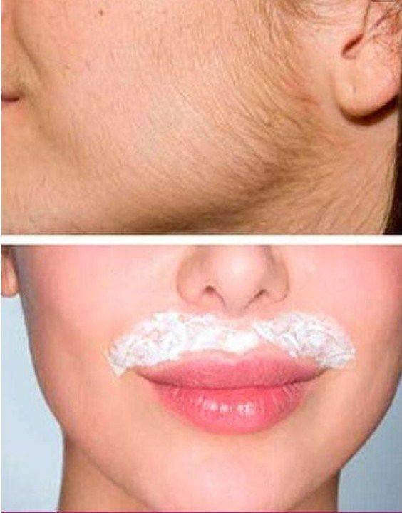 Как удалить усики над верхней губой в домашних условиях