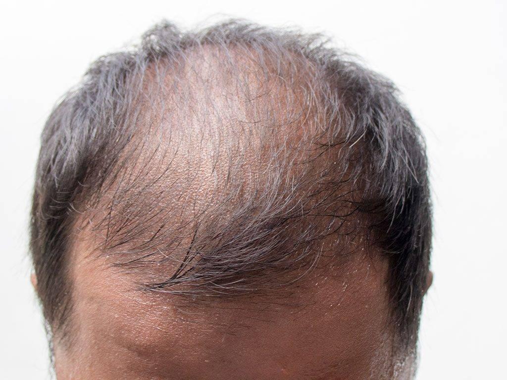 выпадение волос простатите