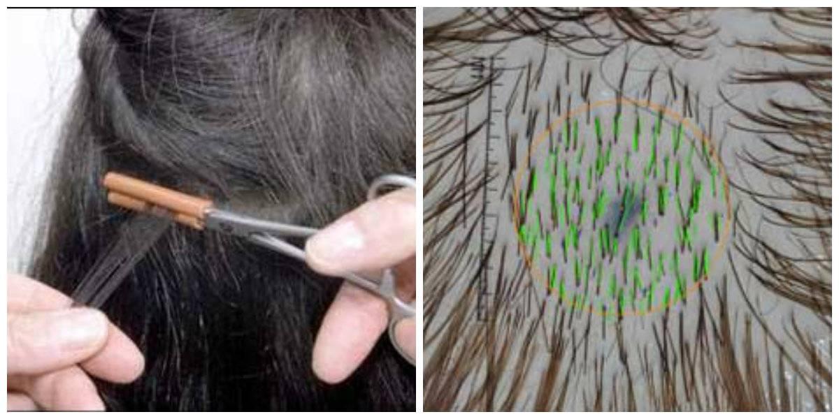 Как в домашних условиях вернуть здоровье и былую красоту секущимся волосам