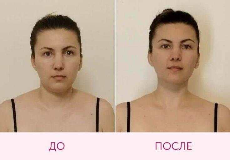 Фейсбилдинг для лица * отзывы с фото до и после упражнений, результаты