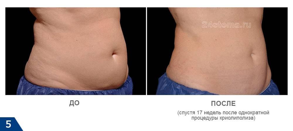 Криолиполиз против липосакции: в чем разница и что лучше выбрать - клиника косметологии