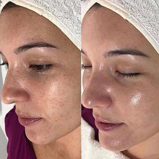 Энзимный пилинг лица: в чем польза этой процедуры
