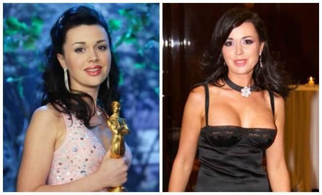 Российские звезды до и после пластики на фото