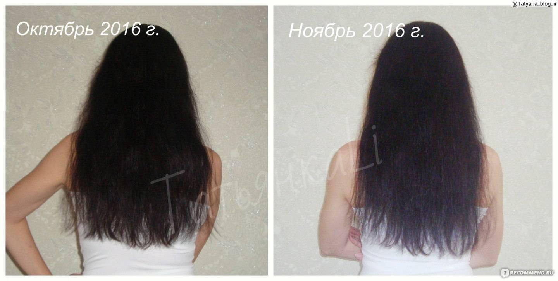 Репейное масло для волос (40 фото): применение масок из масла. как правильно наносить его в домашних условиях? отзывы до и после