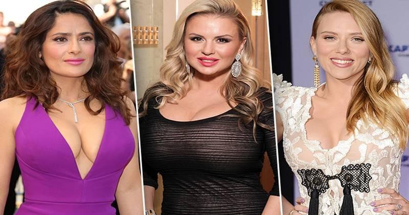 До и после пластики: российские и зарубежные звезды с фото - 24сми