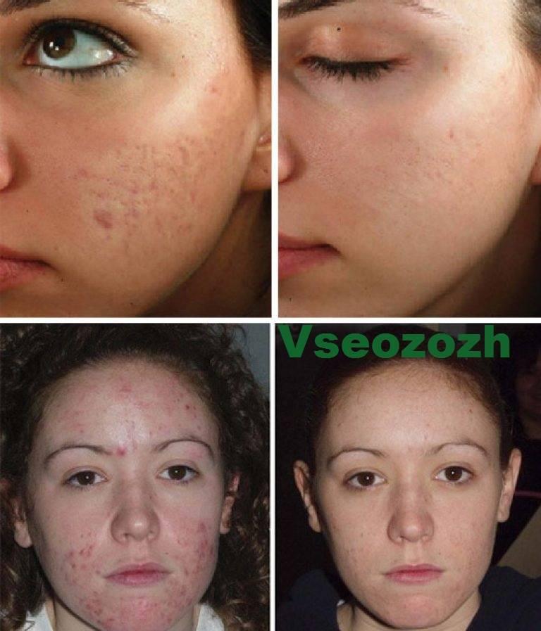 Ультразвуковой пилинг лица: фото до и после, описание процедуры и отзывы